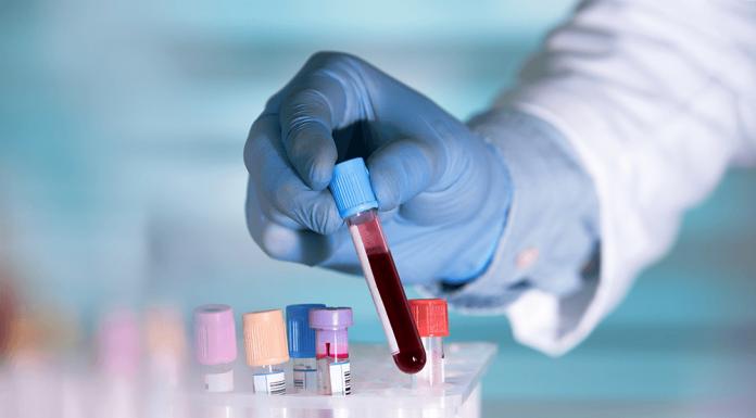 Predecir la calidad de óvulos con un análisis de sangre