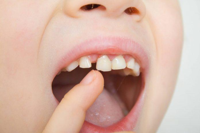Una buena masticación es fundamental en el desarrollo del niño