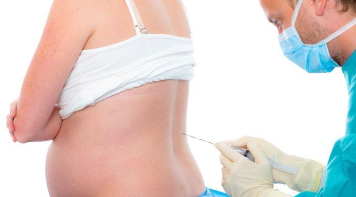 anestesia epidural en el parto